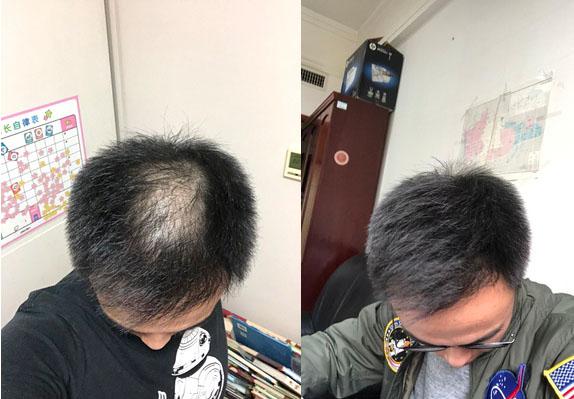 脱发如何治疗?
